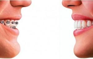 Pijet që nuk për mbajnë sheqer dëmtojnë dhëmbët